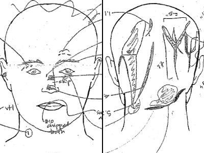 autopsy_diagram-400x300